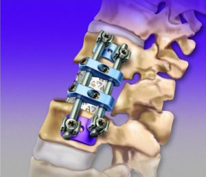 В Медтехнопарке Новосибирска разработали импланты для остеосинтеза