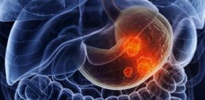 Сибирские учёные могут определить рак желудка на ранних стадиях